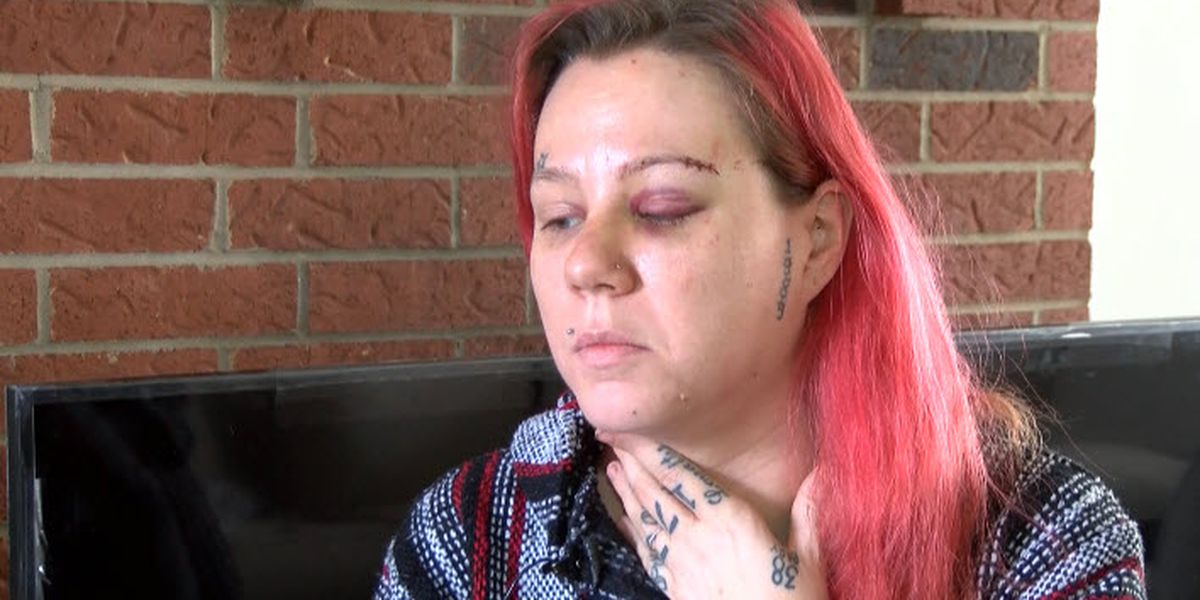 'I really just thought I was going to die.' Woman beaten during robbery at Charlotte apartment
