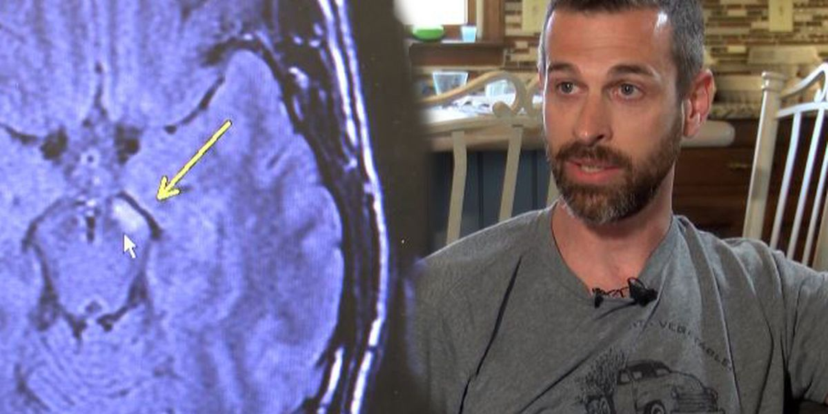 Charlotte man describes numbness that led to Multiple Sclerosis diagnosis