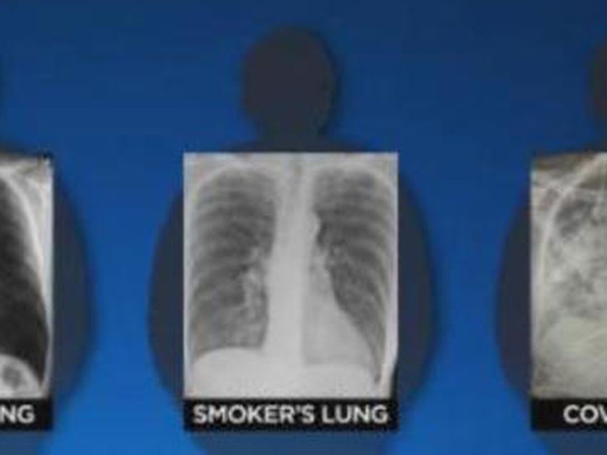 Post-COVID lungs worse than the worst smokers' lungs, surgeon says